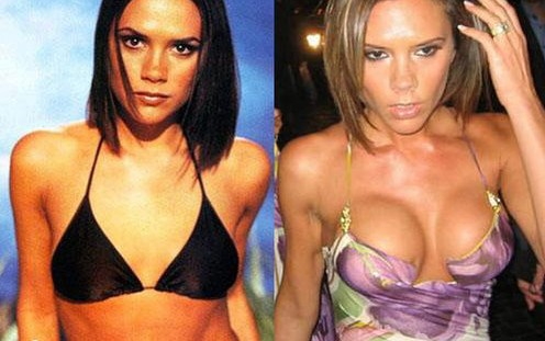 victoria-beckham-cropped-before-after-make-me-heal